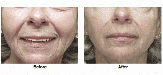Juvederm and Voluma in cheeks, nasolabial folds, lips and marionettes.