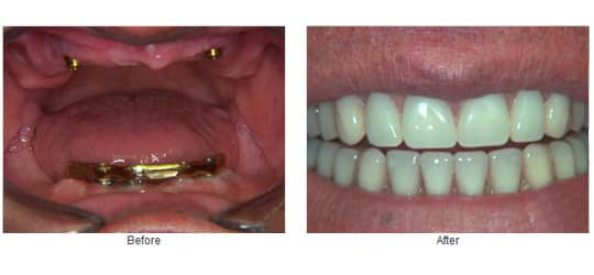 Upper over denture with locator attachments and lower bar over denture.