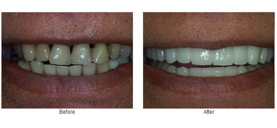 Porcelain crowns and implants.