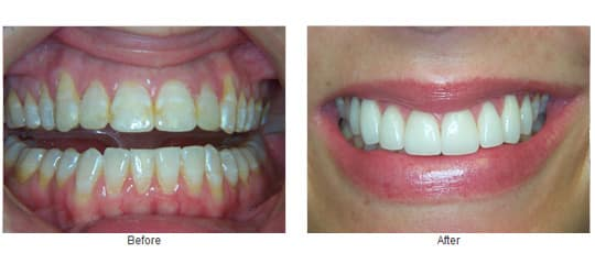 Before and after 8 veneers.