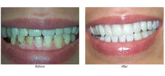 Has a partial over denture, veneers, porcelain crowns and implants.