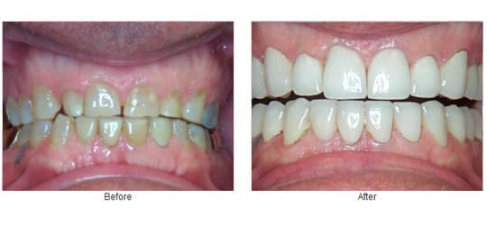 Before and after full mouth porcelain zirconia crowns.
