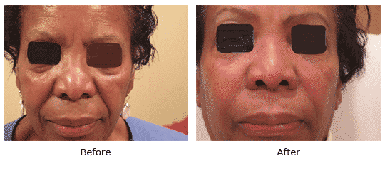 Juvederm in nasolabial folds and tear troughs and Botox between eyes