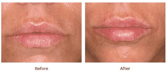 Lip augmentation - Front view