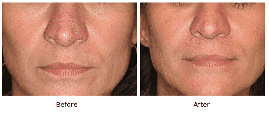 Juvederm in tear trough and nasolabial folds