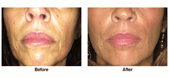 Botox and Juvederm in cheeks and perioral area