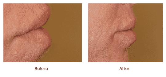 Lip Augmentation - Profile